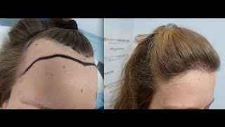 Video 1551 FU's. Hair Transplant by FUE Technique. Female forehead reduction. 1141/2013 download MP3, 3GP, MP4, WEBM, AVI, FLV September 2018