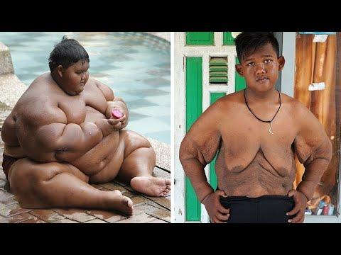 Il Bambino Più PESANTE Al Mondo Ha PERSO 100kg
