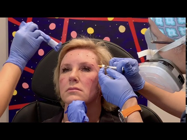 Dallas Filler Injection for Facial Rejuvenation