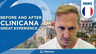 Hair Transplant Turkey Reviews | Before and after Clinicana