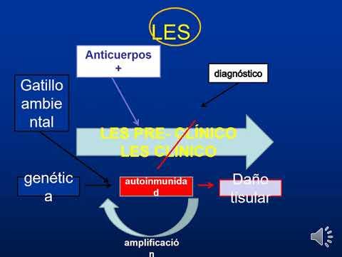 Actualización En Lupus Eritematoso Sistémico