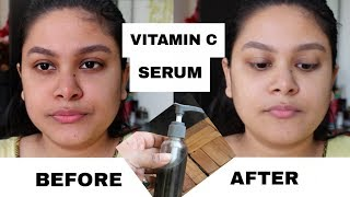Vitamin C Serum For Bright Clear Spotless Skin | Skin Whitening Serum