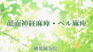 顔面神経麻痺・ベル麻痺 神戸市灘区横幕鍼灸院 ベル麻痺 検索動画 30