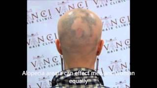 Treating Alopecia Areata (aka spot balding) Using Scalp MicroPigmentation