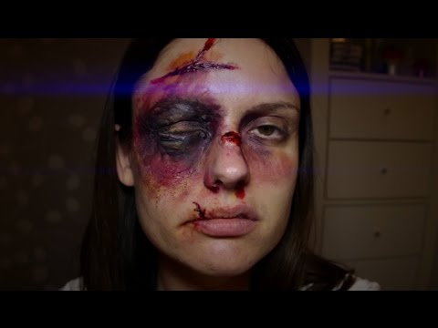 Severe Swollen Black Eye & Bruise SFX Halloween Makeup 2017