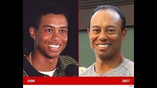 Tiger Woods - Hair Transplant