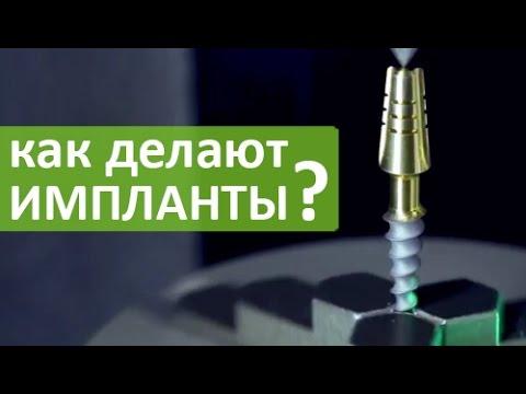 Производители зубных имплантов, рейтинг - какие импланты