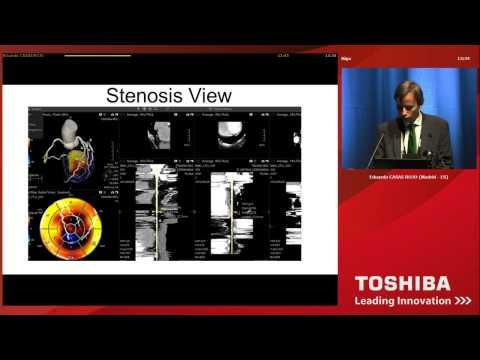 Dr. Eduardo Casas Rojo - Cardio Vascular Imaging Fusion.