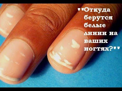 Черточки белые на ногтях у ребенка