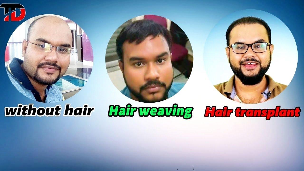 Hair Transplant Vs Hair Weavingtannudada Youtube