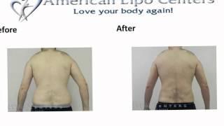 Laser Liposuction Virginia Beach - Before & After Photos