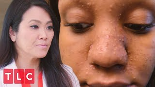 Tiny Bumps All Over Her Face | Dr. Pimple Popper: Before the Pop