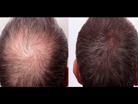 Onion Garlic Apple Cider Vinegar Hair Loss Recipe