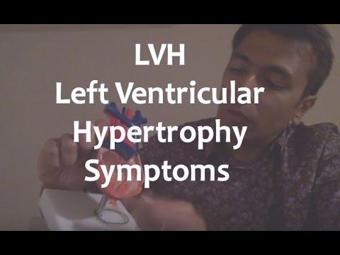 LVH - Left Ventricular Hypertrophy Symptoms