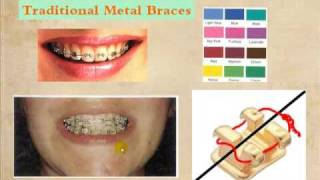 Braces different types and choices by Berwyn and Oak Lawn, IL orthodontist