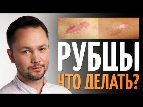 Шрамы (Рубцы). Как избавиться? Обзор методов от врача косметолога.