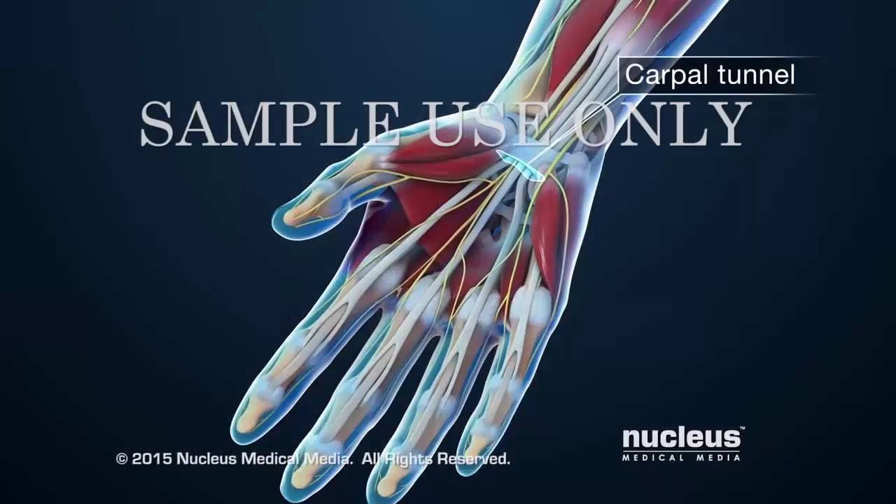 carpal tunnel symptoms - 1280×720