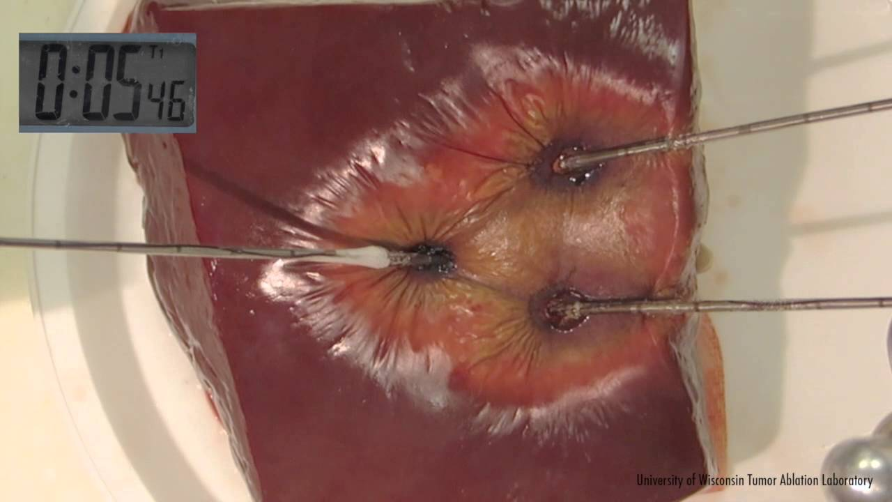 Image result for microwave thermal ablation
