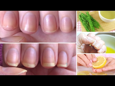 Thumbnail: How to Grow Nails Faster & Stronger: 7 Best Home Remedies