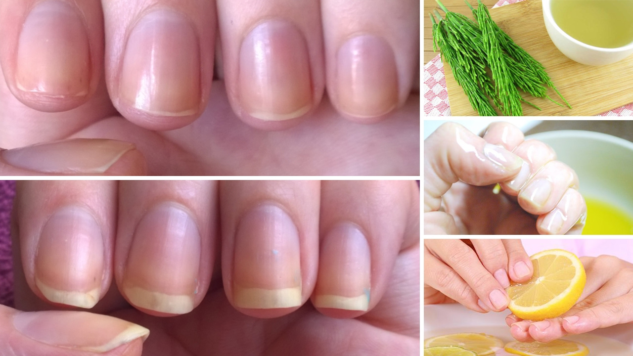 Watch 7 Simple Ways To Keep Your Nails From Breaking So Much video