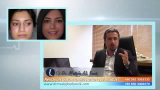 Op. Dr. Mustafa Ali Yanık revizyon burun ameliyatları zormudur