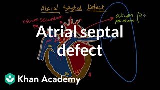 Atrial septal defect | Circulatory System and Disease | NCLEX-RN | Khan Academy