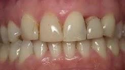 Cosmetic Dentistry - Rancho Cucamonga Inland Empire, CA