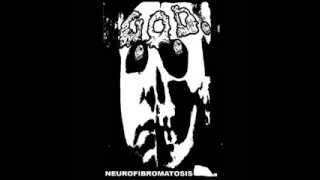 G.O.D. (Grotesque Organ Defilement) - Neurofibromatosis (full album)