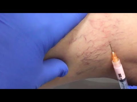 Treat Veins in ONE VISIT | SHAMMA Clinic, Jumeirah 1, Dubai