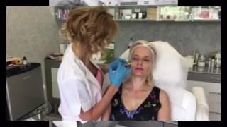 видео Инъекционная биоревитализация