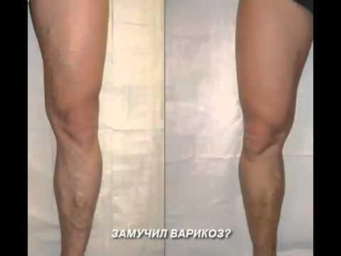 Варикоз на ногах начальная стадия фото - YouTube
