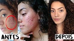 hqdefault - Tratamento Contra A Acne
