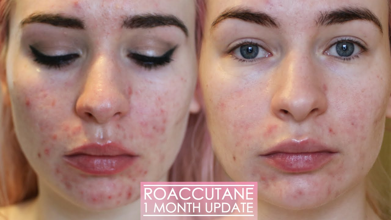 1 MONTH ROACCUTANE UPDATE - Side effects & my skin now ...