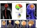 Brain Tumor  Signs You Should Never Ignore