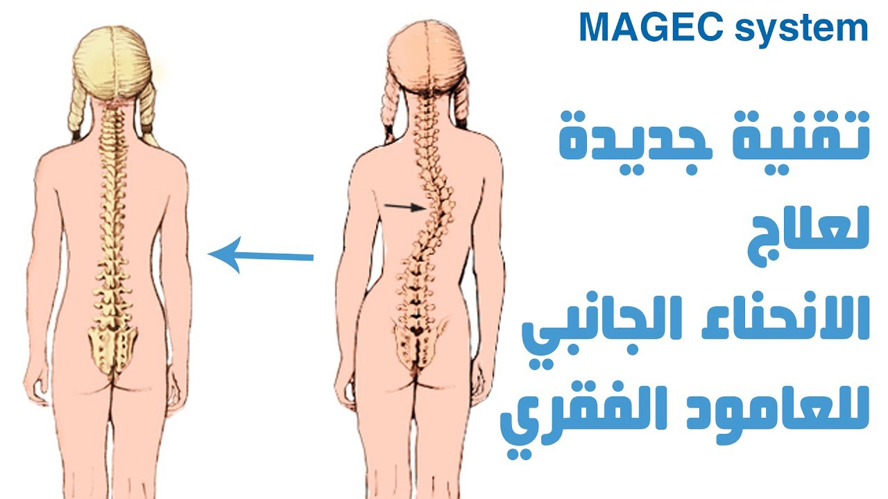 علاج الانحناء الجانبي للعامود الفقري بالقوة المغناطيسية - في العظم