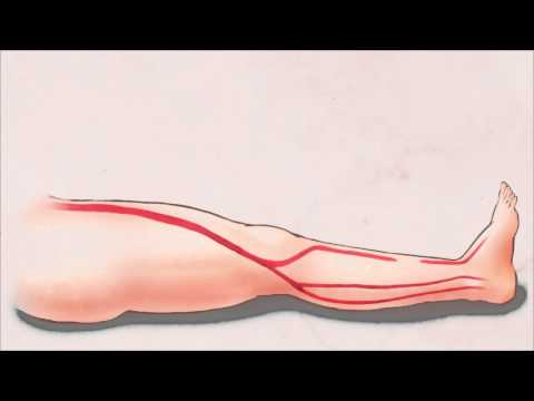Treatment of Critical Limb Ischemia with Balloon Angioplasty and Stents