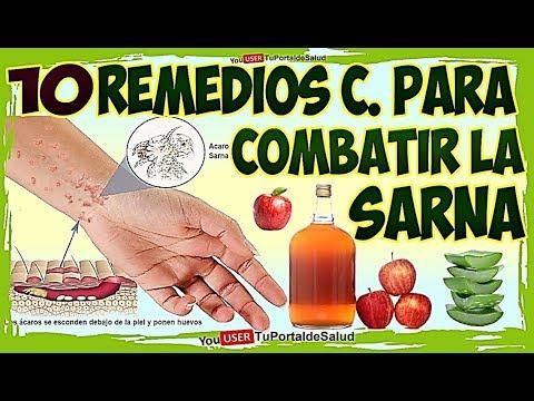 La sarna personas remedios en curar para naturales