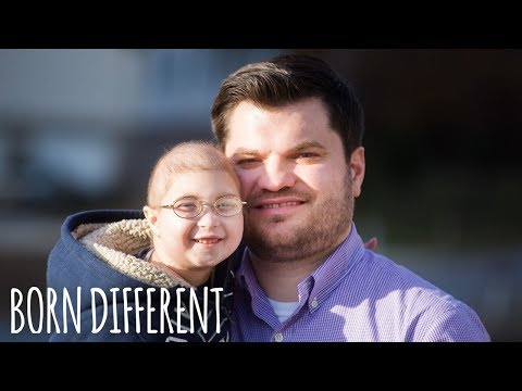 My Rare Dwarfism Makes Me 1 in 4 Million | BORN DIFFERENT