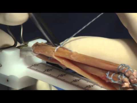 Hamstring Autograft Technique For ACL Reconstruction Surgery