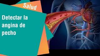 detectar la angina de pecho