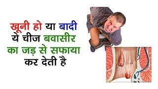 बवासीर खुनी हो या बादी वाली, बिलकुल जड़ से खात्मा करती है ये चीज | Health Time