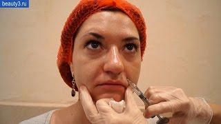 Заполнение носогубных складок. Врач дерматолог-косметолог Зайцева В.Н.