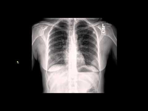 7c Chest X ray Case1 Pt3 V2
