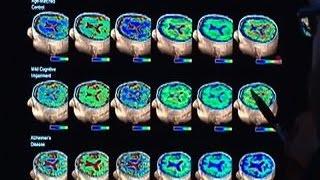 New protein found in brains of Alzheimer's patients