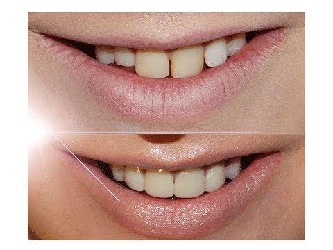 My New Teeth! - What happened?