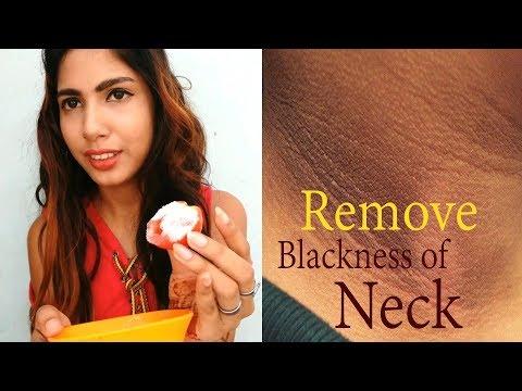 Remove blackness of Neck | Remove Dark Neck | Tomato Scrub | Tuber Tip