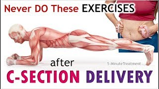 Exercises You Shouldn't Do After C-Section Delivery - Abdominal Exercise | 5-Minute Treatment