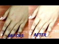 Skin Whitening Secret Formula || 100% Guaranteed Result