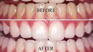Express Teeth Whitening