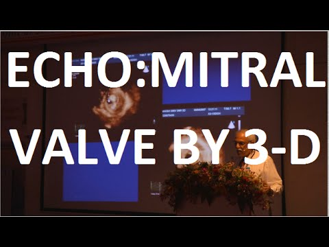 Echocardiography: Mitral Valve by 3D, Dr  R  Alagesan
